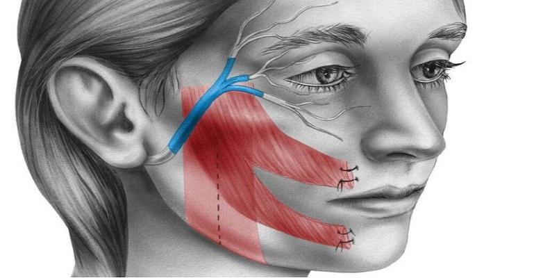 paralisis_facial-1-1-768x560